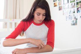 Desloratadyna w leczeniu przewlekłej pokrzywki spontanicznej