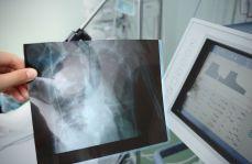 Najnowsze rekomendacje GOLD 2018 w diagnostyce i leczeniu pacjentów z przewlekłą obturacyjną chorobą płuc (POChP)