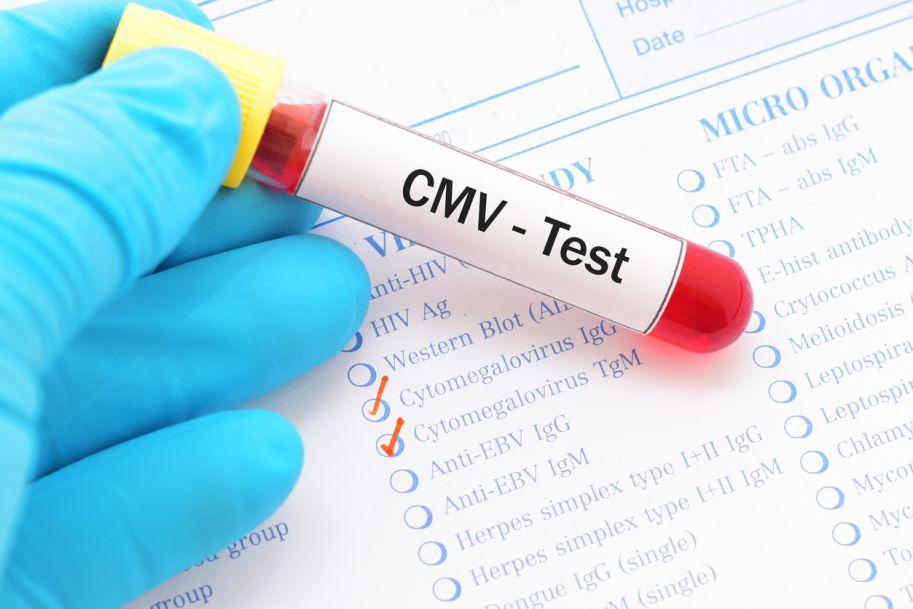 Zakażenie wrodzone wirusem cytomegalii – problem wciąż aktualny (na podstawie doświadczenia własnego oraz literatury)