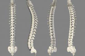 Genetyczny ból pleców