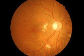 Podstawowe zasady postępowania z pacjentem z retinopatią cukrzycową dla lekarzy rodzinnych i diabetologów