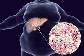 Charakterystyka pacjentów ambulatoryjnych z chorobami wątroby (przewlekłe wirusowe zapalenie wątroby, stłuszczenie wątroby, choroby wątroby powstałe na tle cukrzycy i otyłości) przyjmujących Essentiale® Forte N jako uzupełnienie standardowej terapii w warunkach realnej praktyki klinicznej (wyniki badania wieloośrodkowego REPAIR)