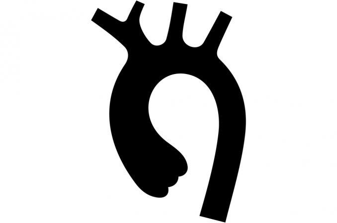 Małoinwazyjnie leczenie tętniaka w łuku aorty