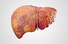 Rekomendacje Polskiej Grupy Ekspertów Niealkoholowej Choroby Stłuszczeniowej Wątroby (PGE-NAFLD*)