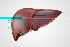 Niezaspokojone potrzeby w diagnostyce i leczeniu niealkoholowego stłuszczeniowego zapalenia wątroby (NASH)