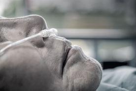 Podczas pandemii nie reanimowano w Hiszpanii ponad połowy osób z zatrzymaniem krążenia
