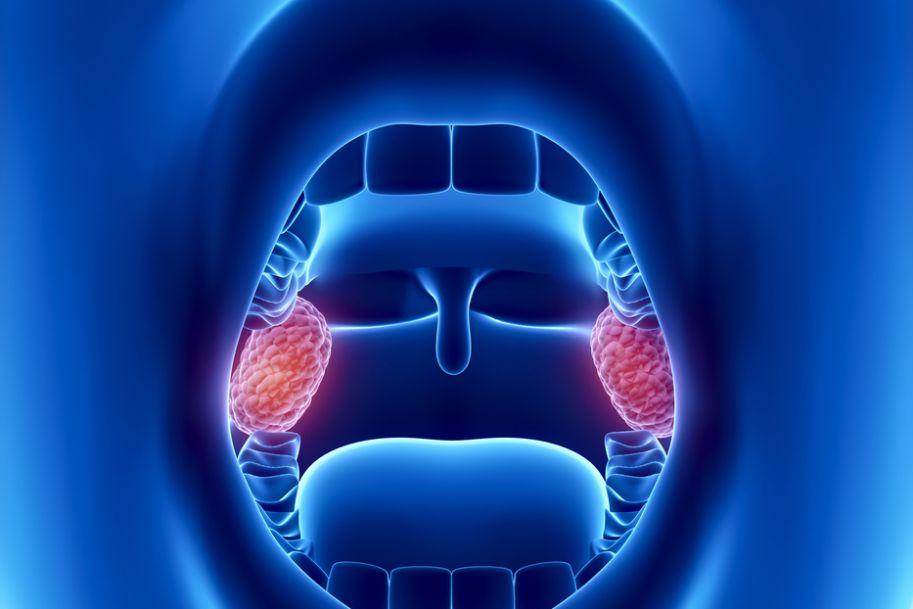 Ostre zapalenia gardła i migdałków