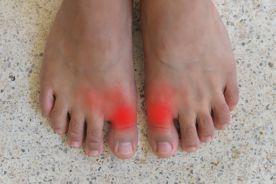 Dna stawowa – diagnostyka i leczenie z uwzględnieniem roli kolchicyny