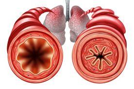 Postępowanie w nawracających zaostrzeniach astmy według najnowszych wytycznych