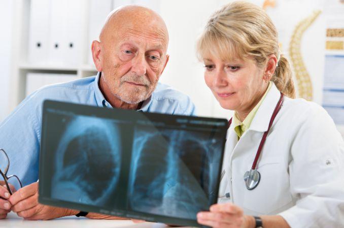 Sarkoidoza – kiedy należy leczyć?
