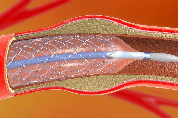 Powikłania w chirurgii naczyniowej – czy można ich uniknąć?