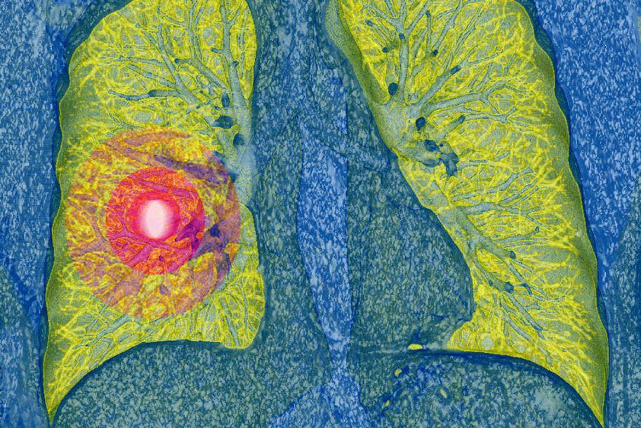 Nowe metody leczenia niedrobnokomórkowego raka płuca