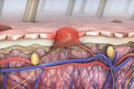 Opis przypadku chorego na czerniaka z przerzutami leczonego niwolumabem