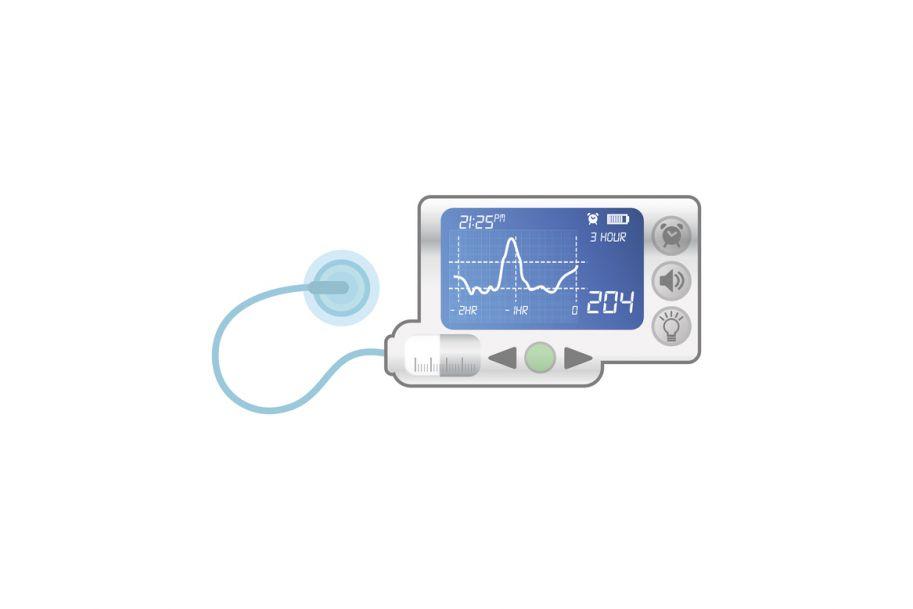 Hybrydowa osobista pompa insulinowa – już tylko krok od sztucznej trzustki?