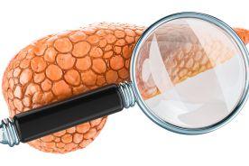 Miejsce agonistów GLP-1 w leczeniu cukrzycy typu 2