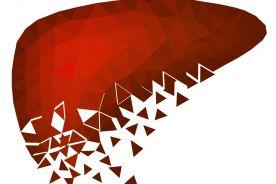 Leczenie niealkoholowej choroby stłuszczeniowej wątroby – opis przypadku