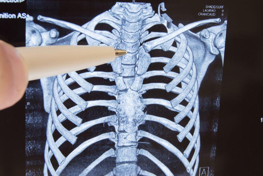 Zastosowanie leków biologicznych w leczeniu bólu kostnego