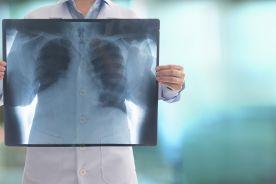 Rola badań obrazowych w astmie, przewlekłej obturacyjnej chorobie płuc i obturacyjnym bezdechu sennym