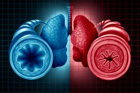 Leczenie zaostrzeń przewlekłej obturacyjnej choroby płuc i zaostrzeń astmy