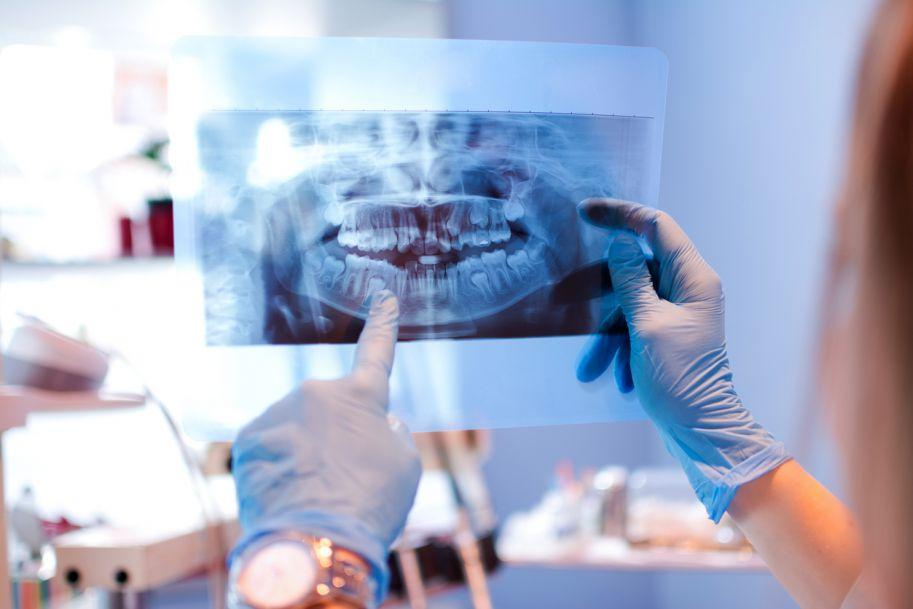 Ropień podniebienia twardego i przetoka nosowo-podniebienna jako powikłanie zęba zatrzymanego w szczęce − opis przypadku
