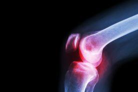 W jaki sposób można poprawić skuteczność leczenia choroby zwyrodnieniowej stawów?
