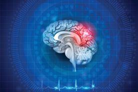 Nadciśnienie tętnicze w wieku podeszłym – profilaktyka pierwotna i wtórna udaru mózgu