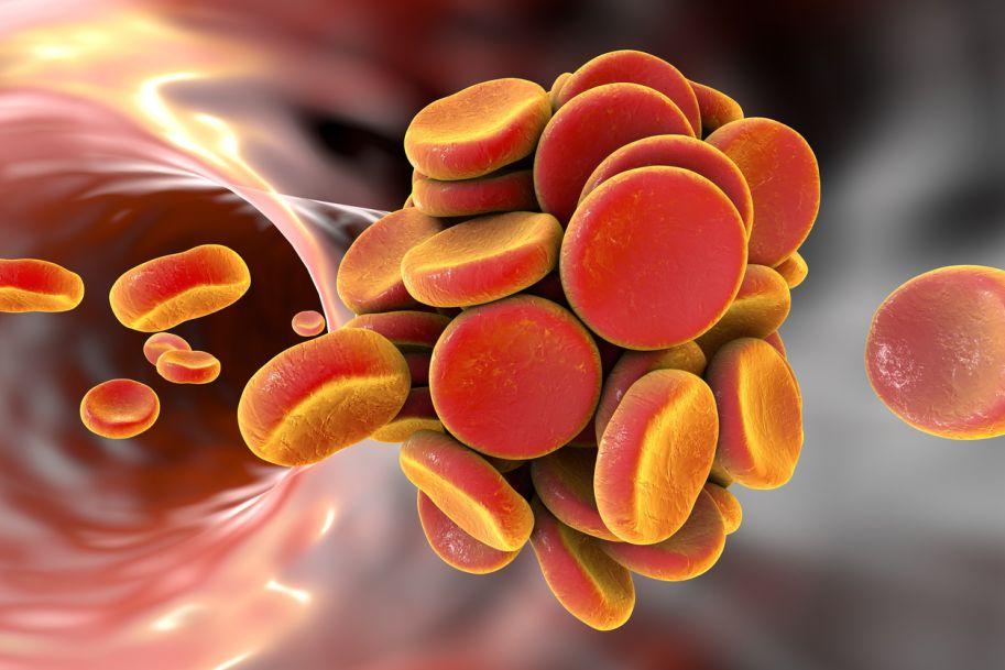 Przewlekła choroba żylna a ryzyko powikłań zakrzepowych