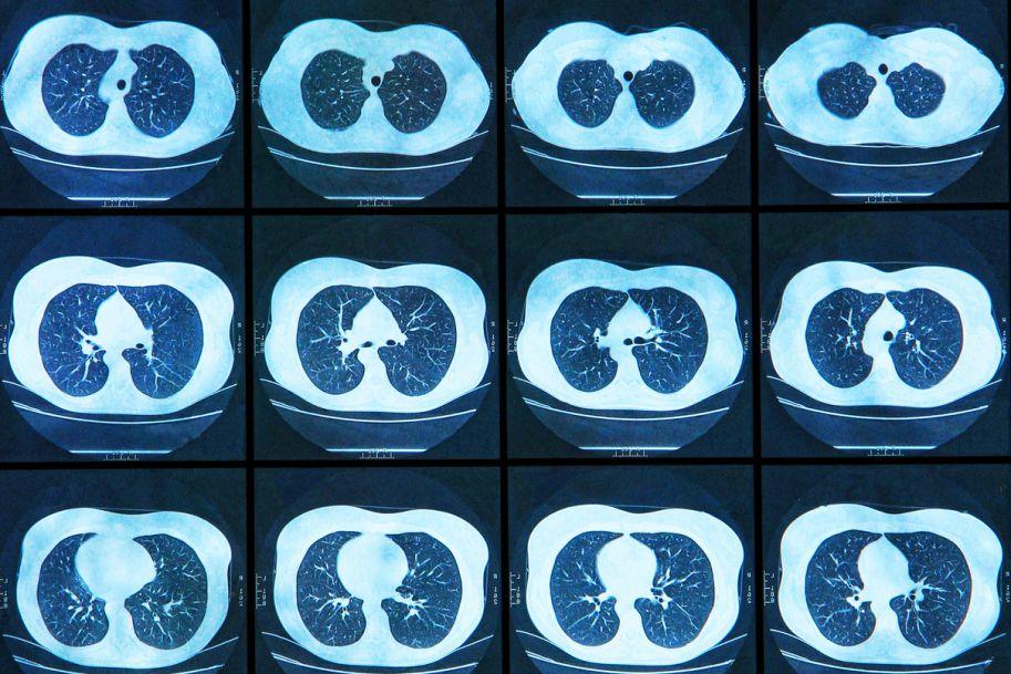 Aktualne metody diagnostyki raka płuca – podstawy terapii personalizowanej