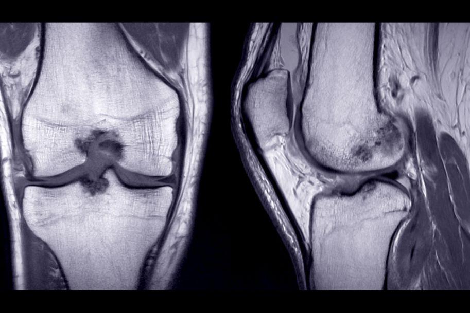 Terapia wczesnej choroby zwyrodnieniowej stawu kolanowego w świetle najnowszych rekomendacji