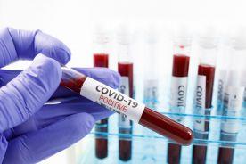Płatne testy na obecność koronawirusa umożliwią skrócenie kwarantanny po przyjeździe do Anglii