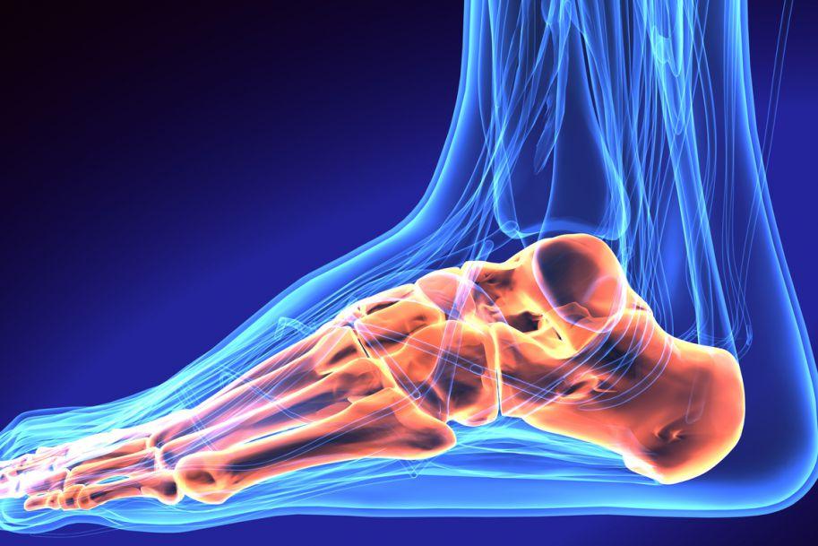 Zastosowanie fali uderzeniowej w terapii pacjentów z ostrogą kości piętowej