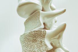 Leki stosowane w osteoporozie