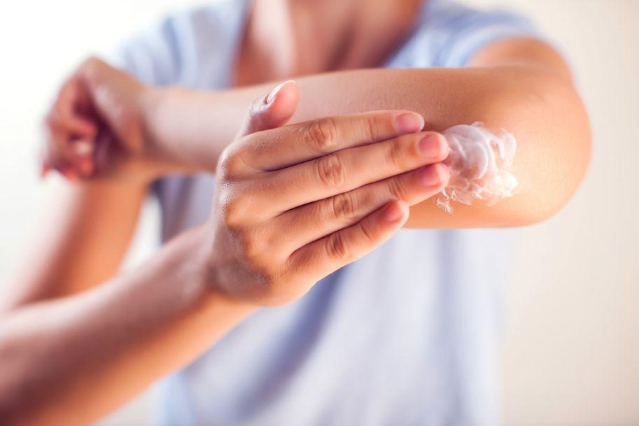 Przezskórne NLPZ w terapii bólu – zastosowanie miejscowego ketoprofenu