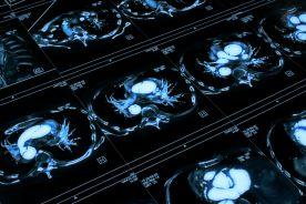 Problemy w diagnostyce zwłóknienia zaotrzewnowego