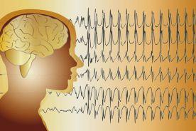 Dysfunkcja autonomicznego układu nerwowego w padaczce