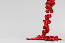 Rozpoznawanie i leczenie niedokrwistości w przewlekłej chorobie nerek – praktyczne podejście