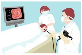 Badania endoskopowe u pacjentów w trakcie leczenia przeciwpłytkowego i przeciwzakrzepowego