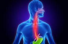 Leczenie choroby refluksowej przełyku w świetle nowych wytycznych