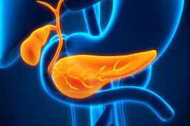 Przewlekłe zapalenie trzustki w praktyce lekarza POZ