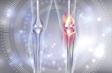 Perspektywy leczenia choroby zwyrodnieniowej stawów. Czy ChZS możemy leczyć jak RZS?