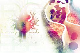 Nisko, jeszcze niżej. Nowe badania i wytyczne postępowania w hipercholesterolemii i hiperurykemii