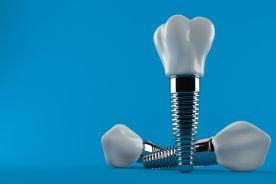 Implant w zatoce szczękowej