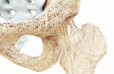 Osteoporoza – profilaktyka i leczenie