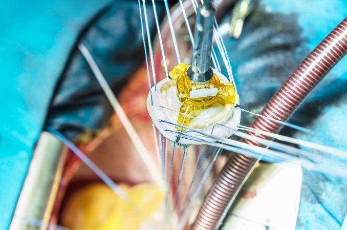 Najczęstsza wada serca u dorosłych w praktyce: jak postępować z pacjentem po zabiegu z powodu stenozy aortalnej?