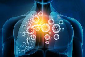 Zastosowanie erdosteiny u pacjentów, którzy przebyli ciężki COVID-19