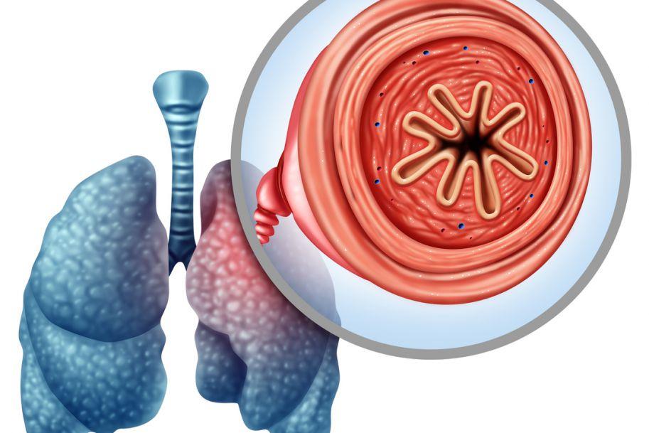 Strategie poprawy skuteczności terapii inhalacyjnej w leczeniu chorób obturacyjnych
