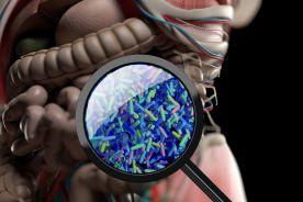 Stosowanie antybiotyków związane z ryzykiem raka jelita grubego