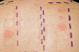 Punktowe testy skórne