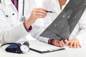 Badanie fazy I/II z zastosowaniem gemcytabiny i winorelbiny w leczeniu niedrobnokomórkowego raka płuca