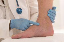 Hiszpańscy lekarze: młodzi pacjenci z Covid-19 mają zmiany na skórze stóp